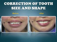 CORRECTION OF TOOTH SIZE AND SHAPE