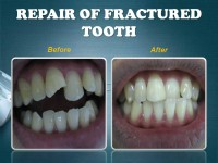 REPAIR OF FRACTURED TOOTH