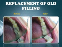 REPLACEMENT OF OLD FILLING