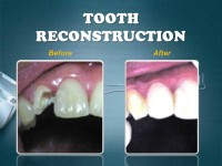 TOOTH RECONSTRUCTION